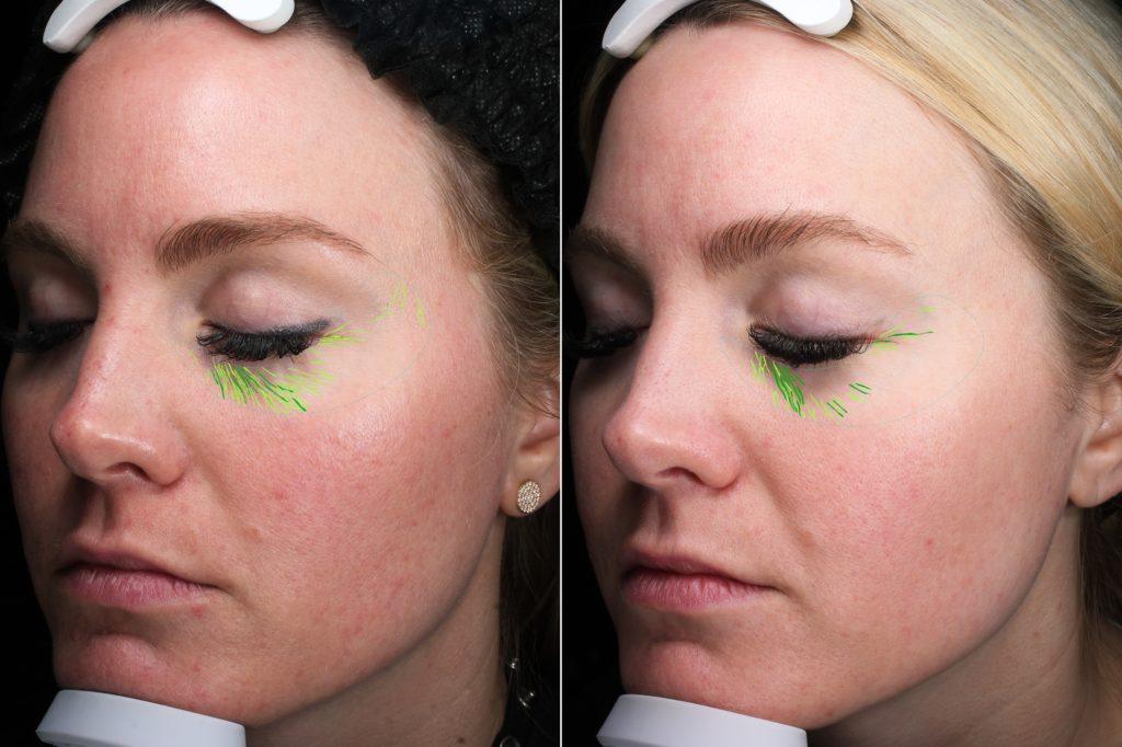 Arizona Facial Plastics - The Bubbly Blonde
